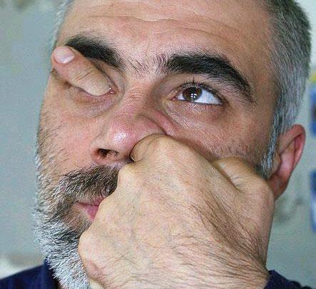 fingerheadyd0